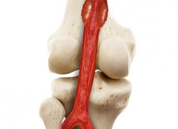 3D modelace do časopisu Cor et Vasa - Centrum sportovní kardiologie